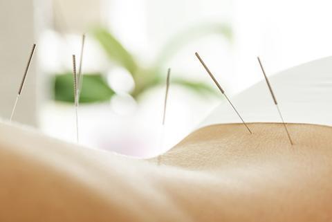 Professionelle Akupunktur in Wesselburen